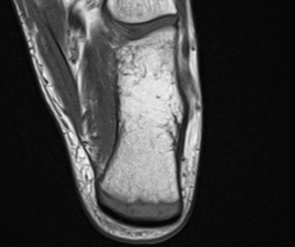 Apophysitis Calvanei Ferse
