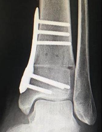 supramalleolare Osteotomie