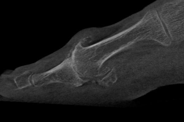 Großzehe Arthrose nach Turf Toe