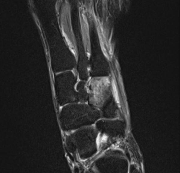 Knochenmarkoedem isoliert os cuneiforme laterale